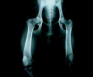 Radiografía de cadera Las Palmas de Gran Canaria http://www.clinica-veterinaria-losgalgos.es/es/