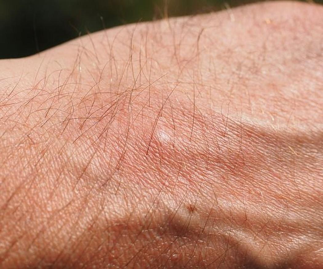 Las alergias más frecuentes en la piel