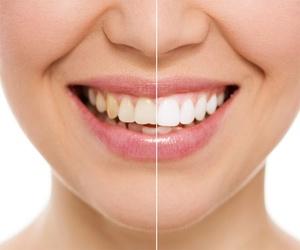 Blanqueamiento dental en Palencia