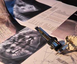 La importancia del Diagnóstico en Ortodoncia. Nuestro sistema de trabajo.
