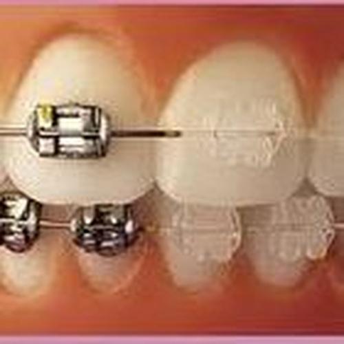 ortodoncistas en El Sauzal