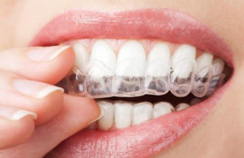 Fotos de Dentistas en Peralta | Clínica Dental Begoña Irigaray