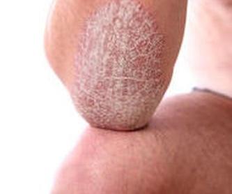 Micropigmentación Barcelona: Patologías y tratamientos de Centro Dermatológico Dr. Javier Bassas