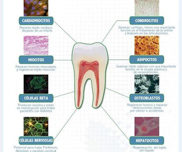 Células madre de origen dental