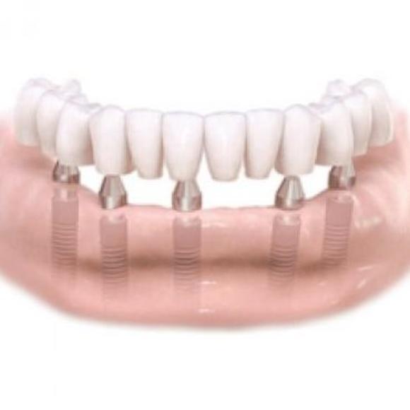 Sobredentaduras: Tratamientos dentales de Clínica Dental Dres. Nuñez García