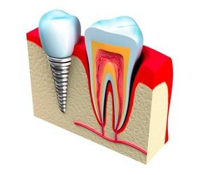 Cirugía y periodoncia