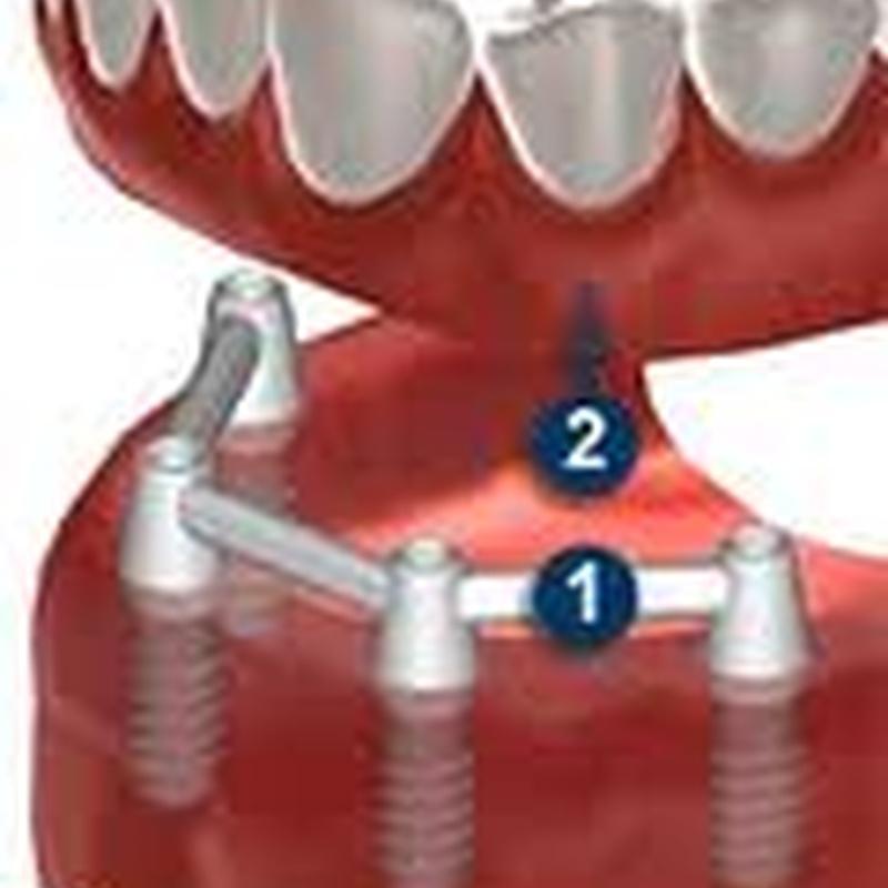 Prótesis sobre estructura de barras.
