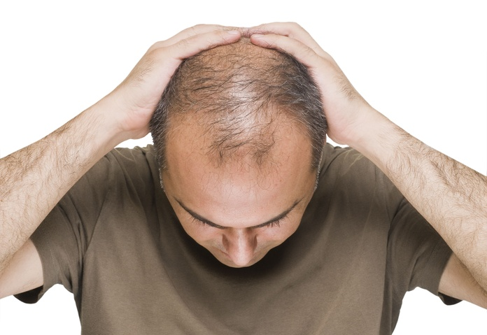Hair diagnosis: Our services de New Image Leo Blasco