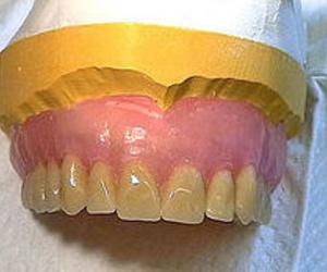 Dentaduras completas