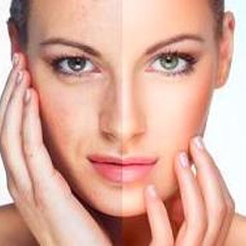 Tratamiento Carboxyterapia facial: Servicios de Centro de estética integral y bienestar Mundo de Ensueño