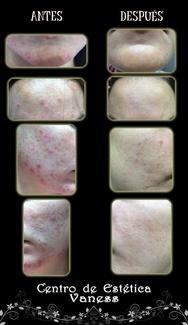 Tratamiento marcas y manchas