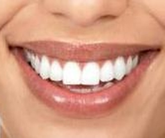 Implantes Dentales: Especialidades de DentoSmile
