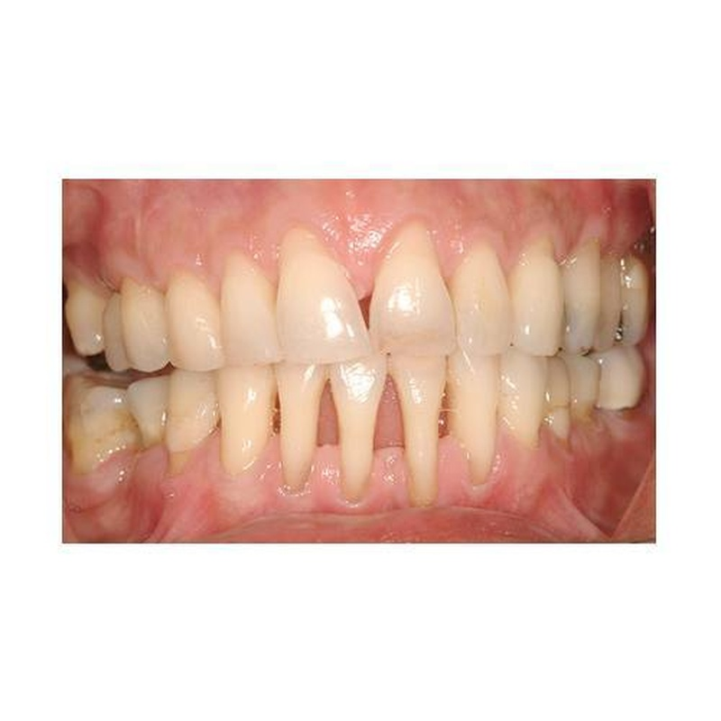 Periodoncia: Especialidades de Estil Dental