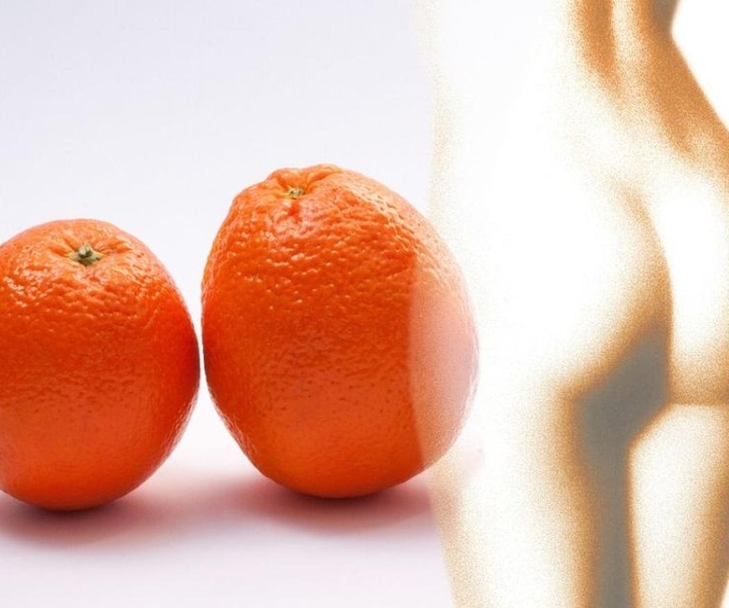 Consejos para prevenir la aparición de la celulitis