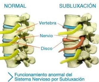 3.2 Tratamientos discales zona lumbar: Servicios de Centros Valverde