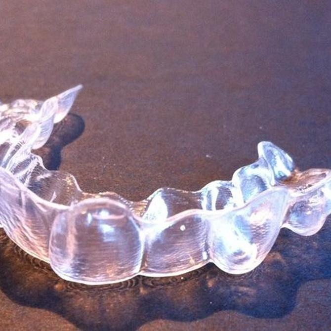 Preguntas frecuentes sobre la ortodoncia invisible