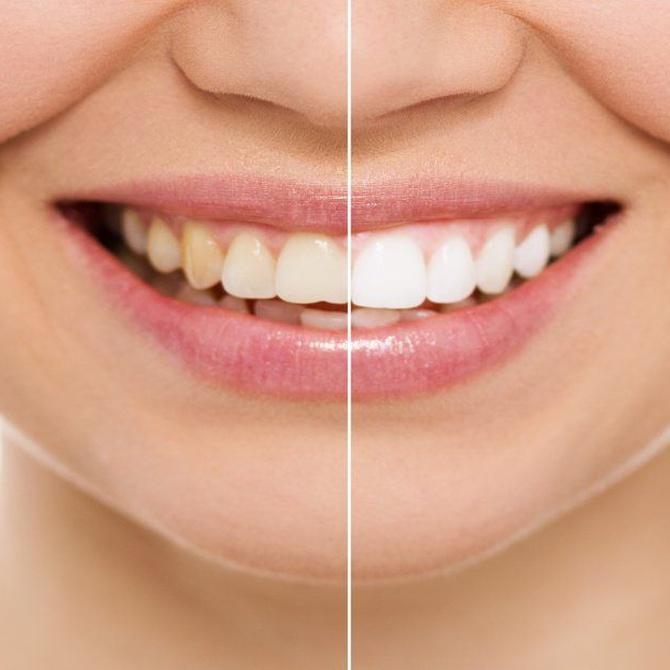 ¿Cada cuánto hay que hacerse un blanqueamiento dental?