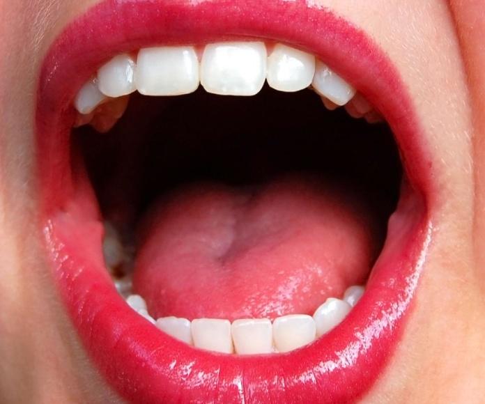 Estética (blanqueamientos, Ácido hialurónico): Catálogo de Clinica Dental Elisa Ravojc