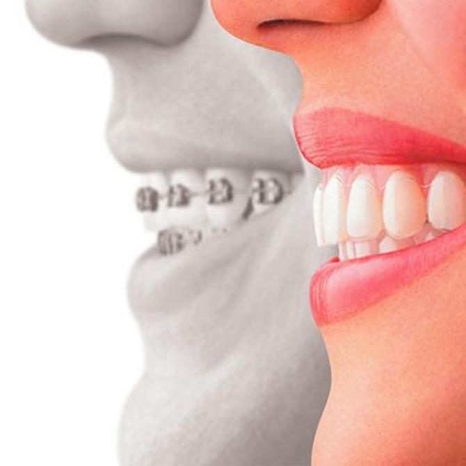 ¿Necesito una ortodoncia?