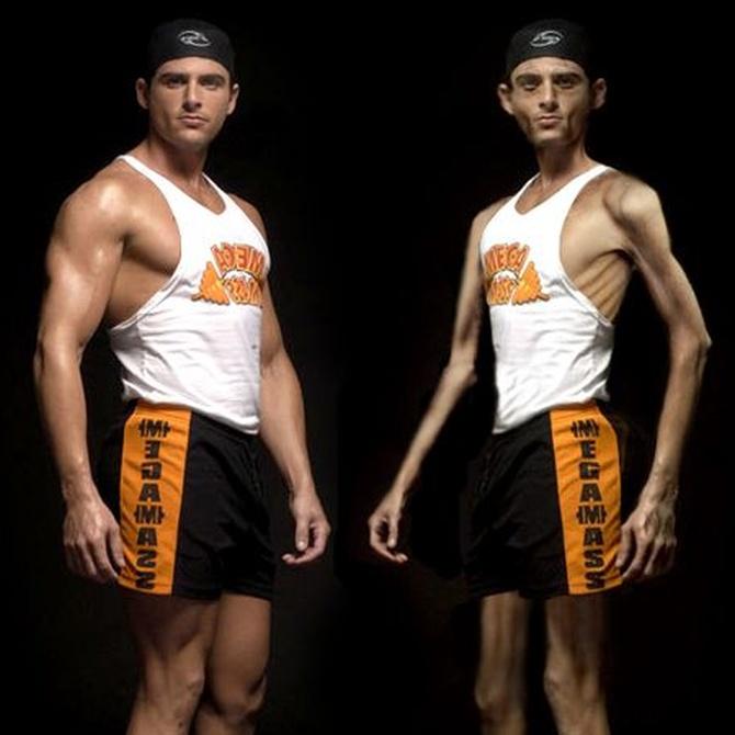 Anorexia y bulimia, enfermedades también de hombres