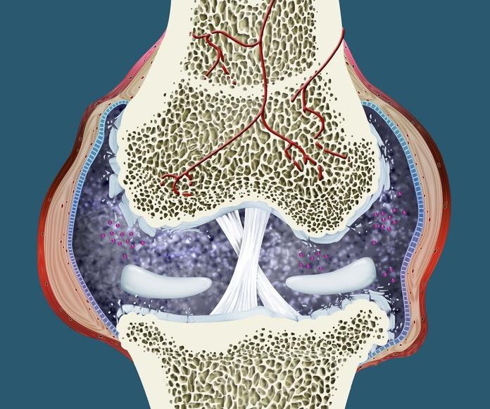 Articulación con artrosis