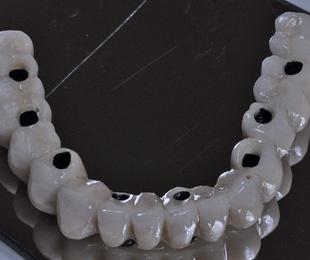 Implantes dentales en Ciudad Lineal