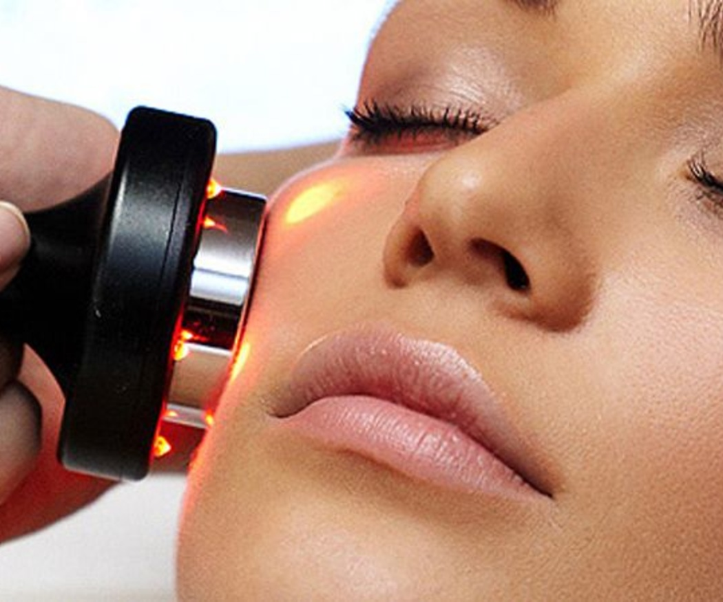 Ventajas de la eliminación de manchas faciales con luz pulsada