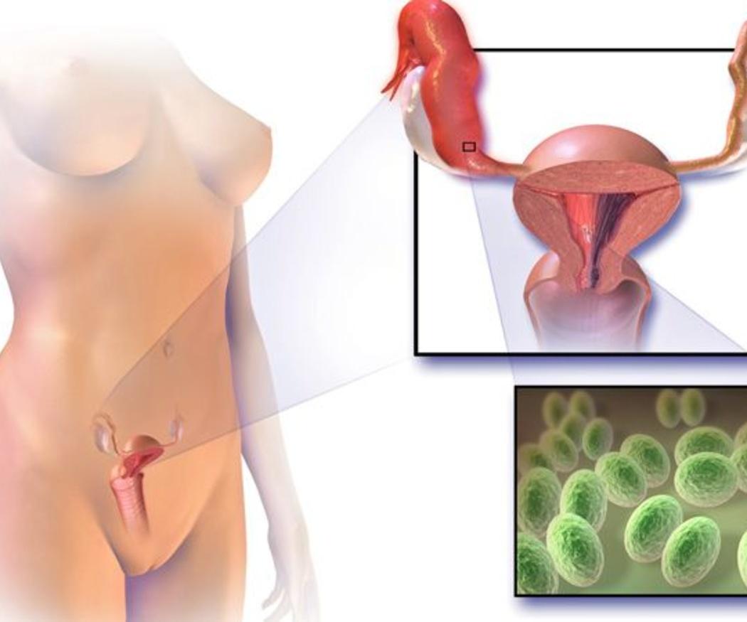 ¿Qué es la vaginitis?