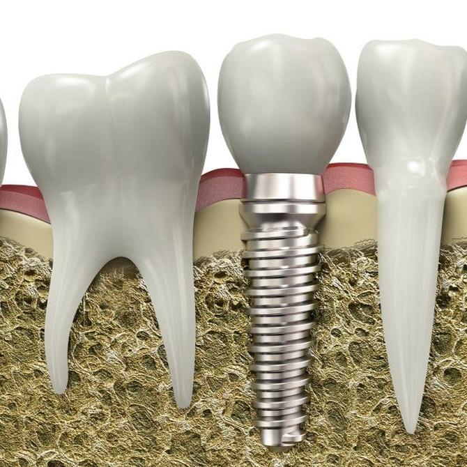 Las edades para colocarse implantes