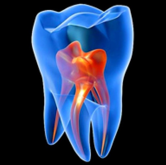 ENDODONCIA: ESPECIALIDADES de Clínica Dental Morey