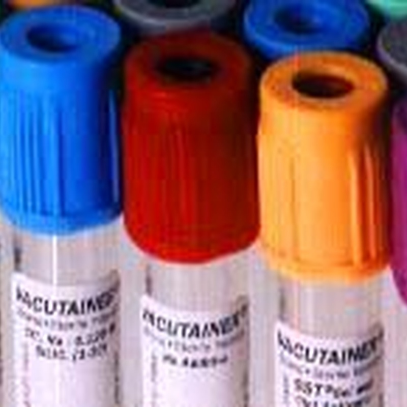 Tubos para extracción de sangre : Productos de PLUS CLINIC