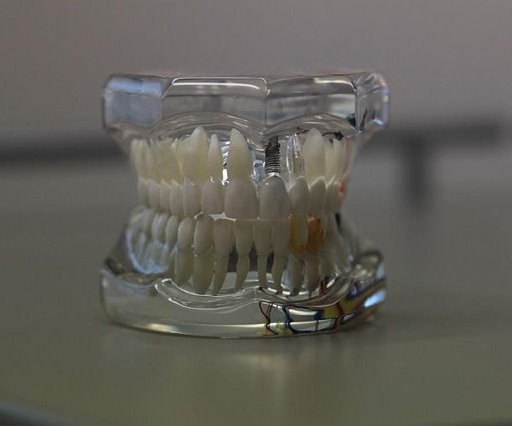 ¿Necesitas una dentadura postiza?