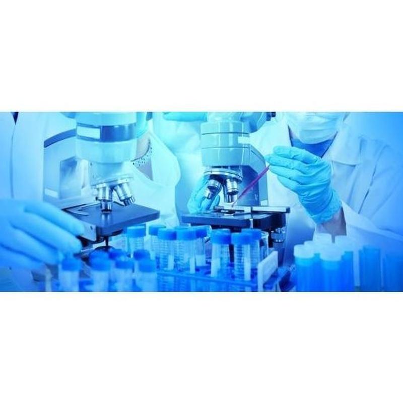 Control Externo: Servicios de Laboratorio Valenzuela