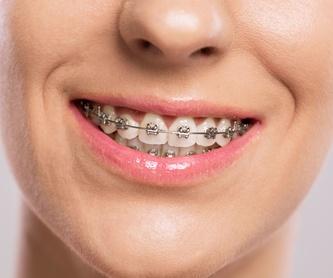 Brackets estéticos: Ortodoncia de Isabel Perales Clínica Dental