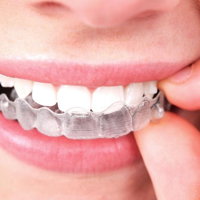 4 ventajas de la ortodoncia invisible
