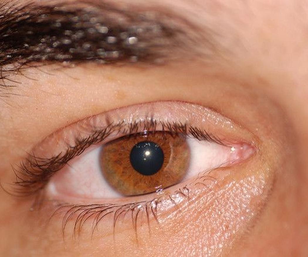 El posoperatorio del glaucoma