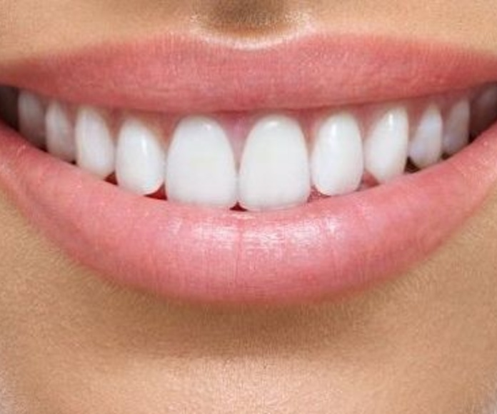 prótesis dental sevilla