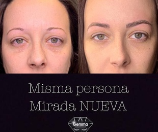 Micropigmentación Realista