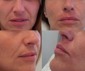 Eliminación de Nevus Faciales (nevus de ota): Tratamientos de Centro Médico Bellón