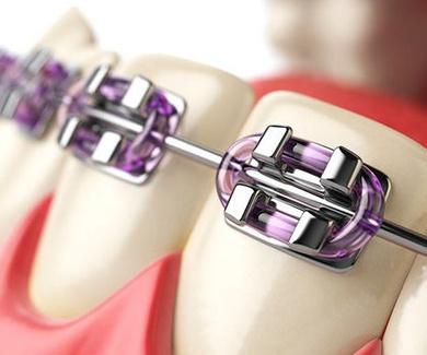 Ortodoncia dental en Sabadell