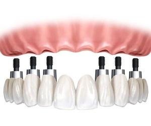 Todos los productos y servicios de Especialistas en estética dental, implantes y periodoncia: Clinica Dental Dr. Ortega-Monasterio