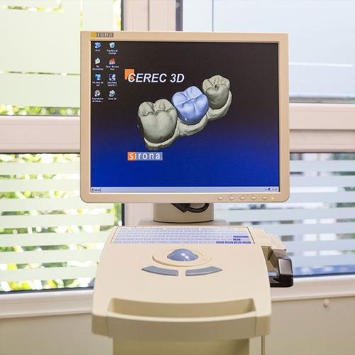 Implantes dentales en Gijón