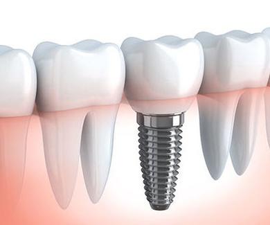 Implantes calidad premium