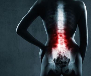 Lo que hay que saber para el manejo de pacientes con dolor lumbar