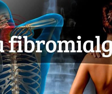 Fibromailgia y dolor miofascial