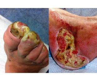 Circulación arterial y pie diabético