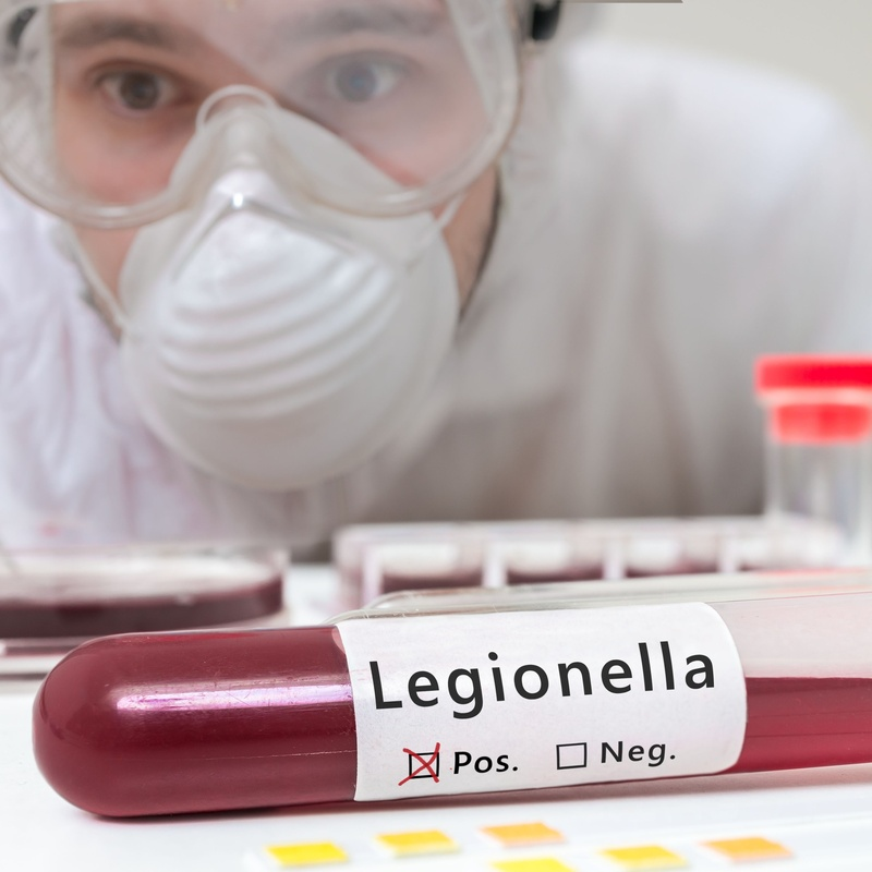 Control y prevención de Legionella: Servicios de AGP Sanidad Ambiental