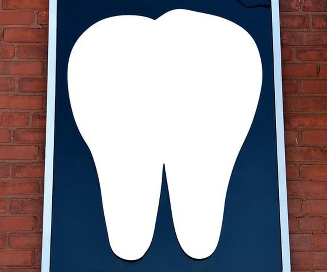 Consejos para un buen cuidado de los implantes dentales