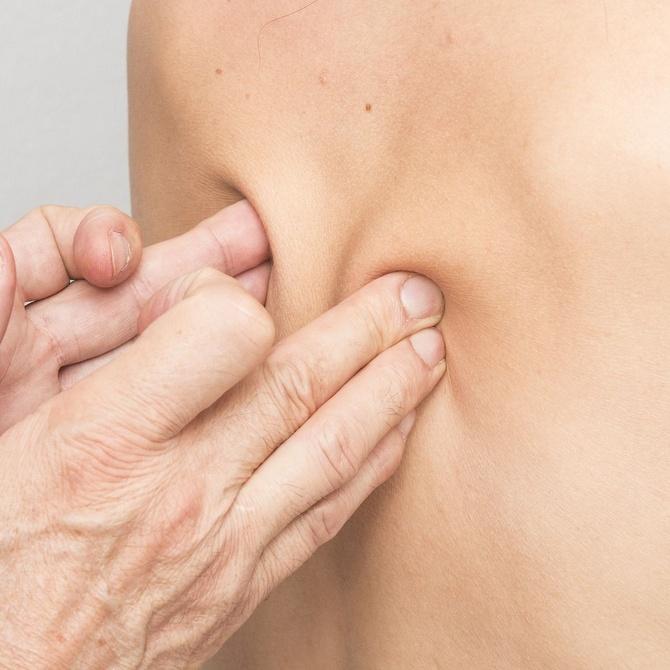 Diferencias entre dolor de espalda mecánico e inflamatorio