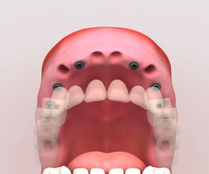 Todos los productos y servicios de Dentistas: Centro Dental Integral Mª Azucena Plata Vega